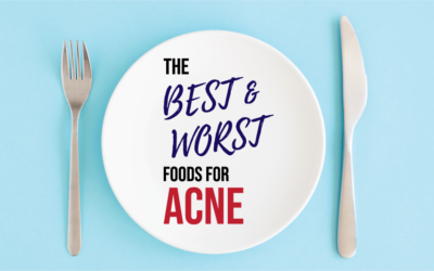 The Best and Worst Foods for Acne